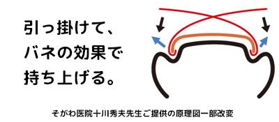 そがわ式陥入爪・巻き爪矯正法(SH法)の原理